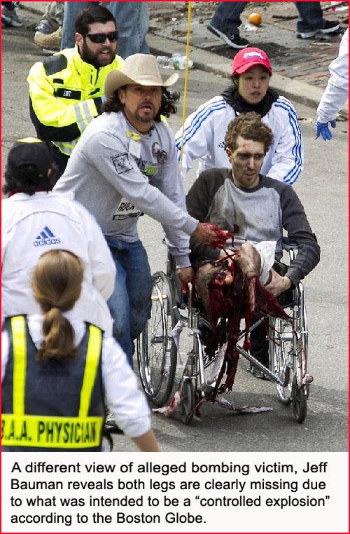 jeff-baum-wheelchair-view-boston-bombing